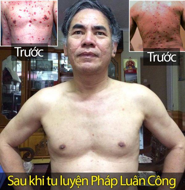 Nguyen Van Bai agora pode sair na rua sem camisa, algo que não poderia fazer antes diante de tantas doenças de pele (NTDTV)