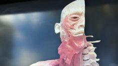 """Associações profissionais pedem que governo australiano investigue controversa exposição """"Real Bodies"""""""