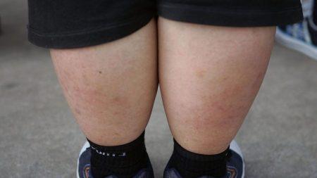 Homem ganha 100 quilos durante de cinco meses em quarentena por causa da COVID-19